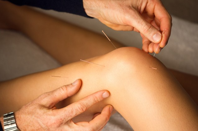 Sports Injuries – Why Choose Acupuncture?